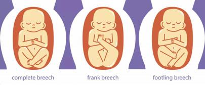 Breech position